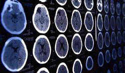 Risque d'Alzheimer et de Parkinson : les 4 priorités