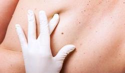 Cancer de la peau : une augmentation constante en Belgique