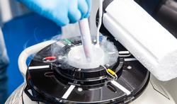 Kankerpatiënten krijgen kosten voor invriezen ei- of zaadcellen terugbetaald