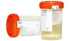 Les toilettes qui analysent notre urine