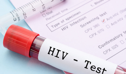 Hiv in België: feiten en cijfers