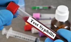 123-m-syfilis-test-soa-15-9-21.jpg
