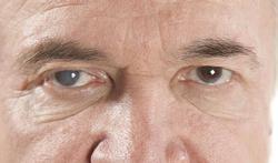 Cataract of grijze staar