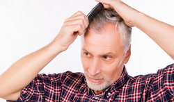 Vroegtijdige kaalheid verhoogt kans op prostaatkanker