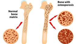 Preventie en behandeling van postmenopauzale osteoporose