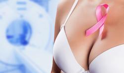 Osteoporose na borstkanker onderschat