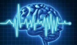 Vidéo - L'électro-encéphalogramme (EEG)