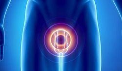 Cancer de la prostate : les effets du cholestérol