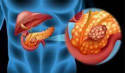 Cancer du pancréas : bientôt un dépistage précoce ?