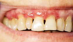123-periodontitis-parodont-tand-06-19.png