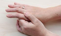 Polyarthrite rhumatoïde : l'efficacité de la thérapie combinée « light » à la cortisone
