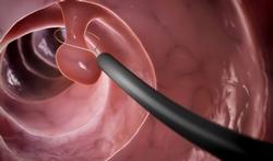 Cancer du côlon : pour un test de dépistage dès 45 ans