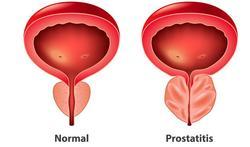 123-prostatitis-ontstek-prost-1-02-19.jpg