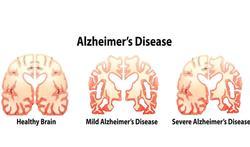 Hersenscan brengt vroeg alzheimer aan het licht
