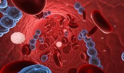 Quelle différence entre infection et inflammation ?