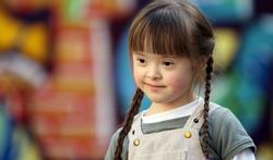 Supplementen beïnvloeden gezichtsvorming bij kinderen met Downsyndroom