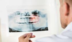 Mauvaises dents : la souffrance des poumons