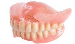 Prothèse dentaire : pas évidente à porter…