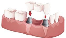 Verhogen antidepressiva kans op mislukking tandimplantaat?