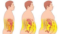 Obesitas verslechtert vooruitzicht van jongere nierpatiënt