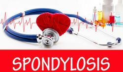 Oorzaken en gevolgen van een verschoven ruggenwervel (spondylolisthesis)