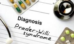 Prader-Willi syndroom (PWS): oorzaken en behandeling