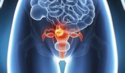 Gène du cancer du sein : et l'utérus ?