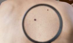 Vidéo - Tache sur la peau : quand faut-il consulter un médecin ?
