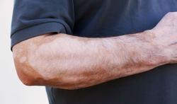Quelles sont les causes du vitiligo ?