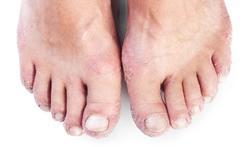 Contactallergie voor schoenen