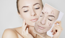 Wat kan je doen tegen acne?