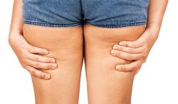 123-vr-benen-cellulitis-gewicht-04-19.png