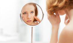 Meerderheid van patiënten met acne krijgt medicatie