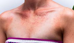 Alles over zonneallergie: klachten, oorzaken en behandeling