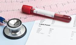 Wanneer is je cholesterolgehalte te hoog?