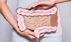 Alles wat je moet weten over darmkanker