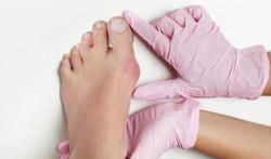 Hallux valgus: oorzaak, symptomen en behandeling