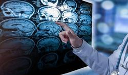 123_hersenen_scan_dokter_MS.jpg
