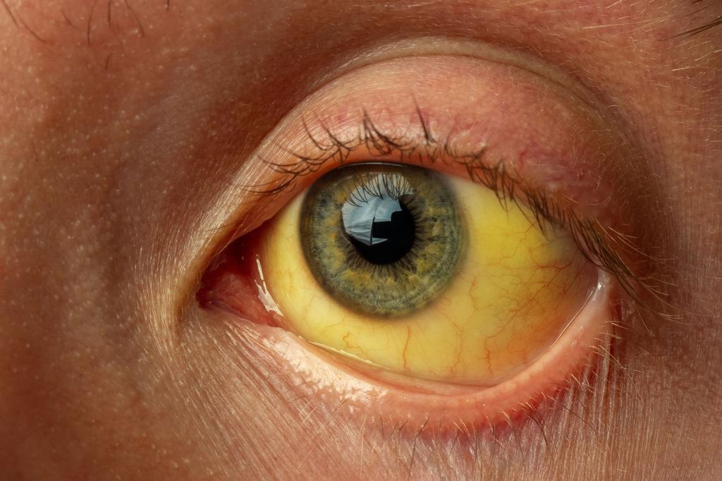 123_oog_geel_hepatitis.jpg