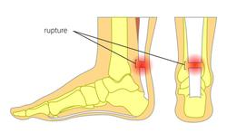 Rupture du tendon d'Achille : opérer ou pas ?