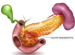 123m-acute-pancreatitis-01-17.jpg