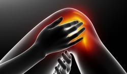 Arthrose : le paracétamol est-il utile ?