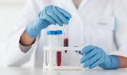 Cancer : un test de détection 4 ans avant les symptômes