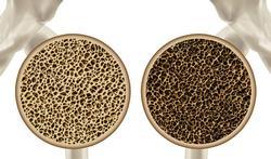 Ostéoporose : quels risques et quel traitement ?
