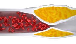 Mauvais cholestérol : il faut réduire le plus tôt possible