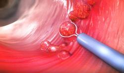 Cancer du côlon : quel effet des médicaments contre l'hypertension ?