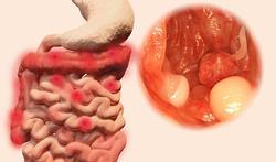 Zijn darmpoliepen gevaarlijk?
