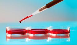 40 - 50 ans : surveillez de près votre glycémie