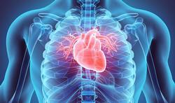 Inflammation du cœur : quels médicaments peuvent être en cause ?