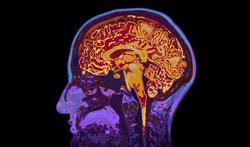 Risque d'Alzheimer : quel rôle jouent les pensées négatives ?